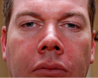 Rosacea Before1b_edited-1.jpg